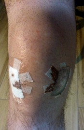This is how I found my knee when I unwrapped the bandages 48 hours after the operation.